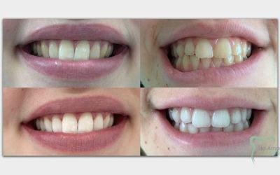 Tudo Que Precisa Saber Sobre Branqueamento Dentário